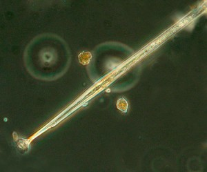 A photo of one end of the dinoflagellate Amphisolenia quadrispina.