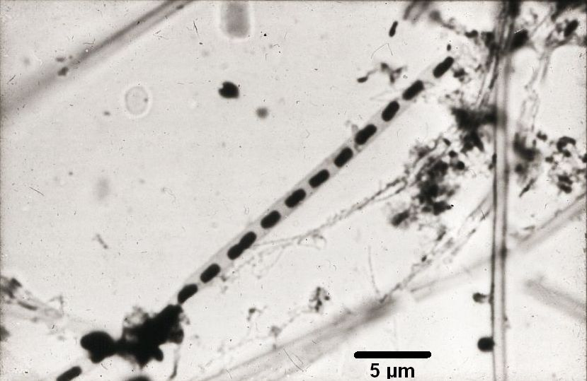 A chain of <i>Leptothrix</i> cells in a sheath, taken with a light microscope