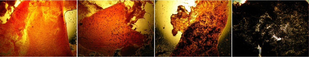 Image: Slides of oysters suffering different Dermo intensities as the parasite multiplies, from healthy (left) to severely infected (right). (Credit: SERC Marine Ecology Lab)